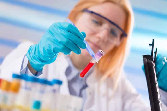 Teva Hiring Chemistry & Pharma Candidates- Apply Online